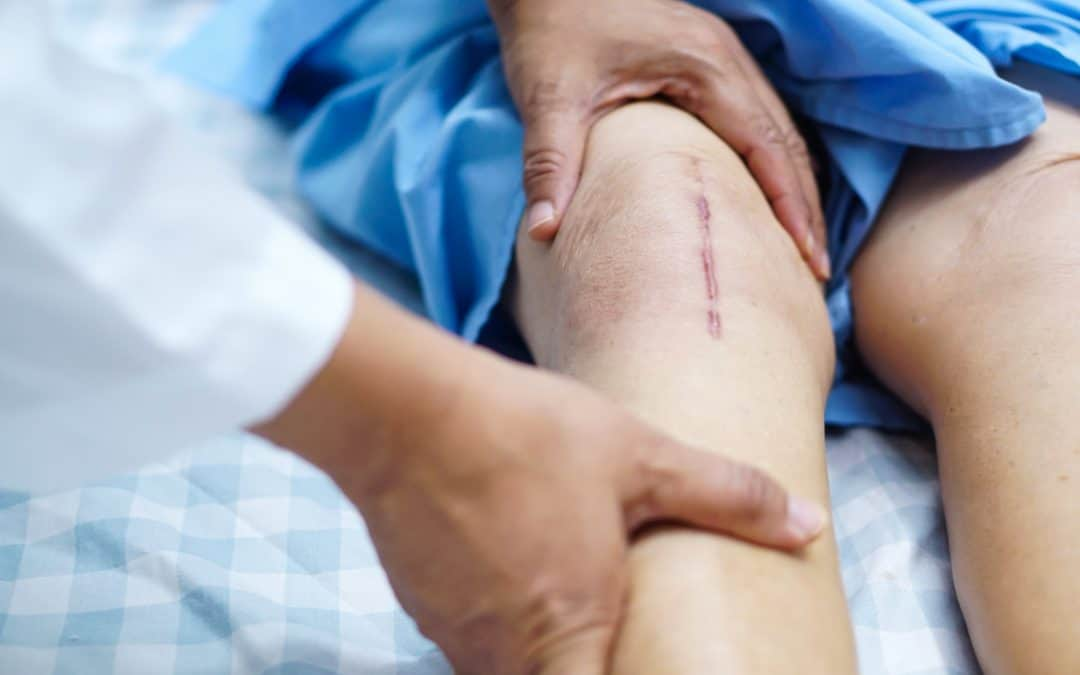 5 Things to Do Before Knee Replacement Surgery